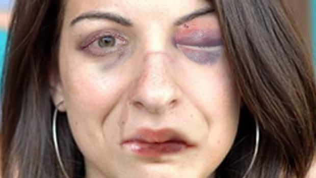 Beat Up Anita Sarkeesian