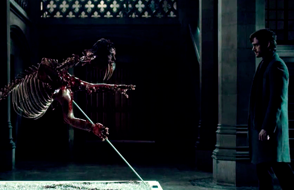 Hannibal - Season 2 Episode 10 - Will Randall